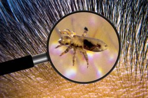 lice under magnified glass